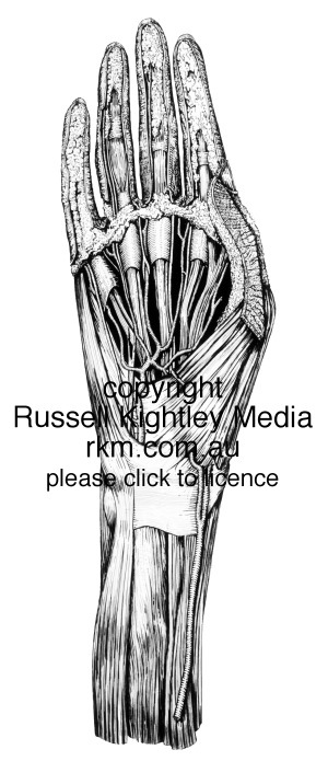 Hand anatomical and medical illustration, human hand (dissection) by