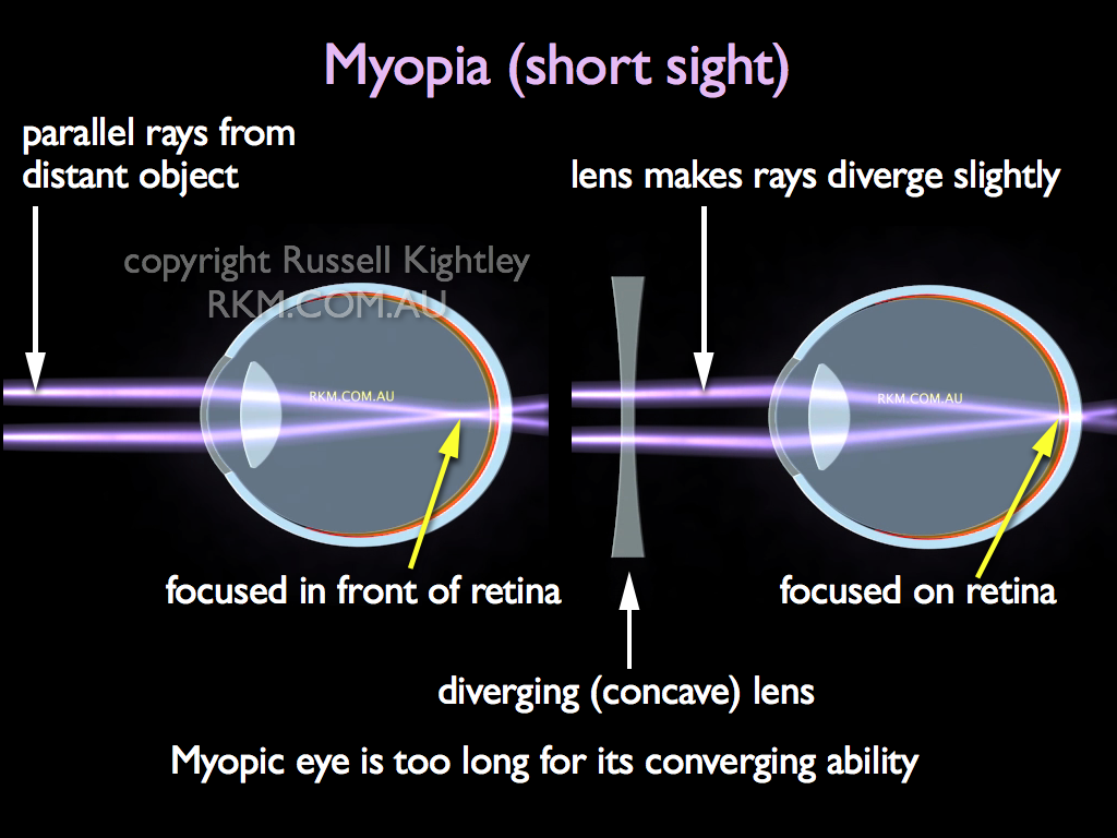 Diagram Of Eye With Myopia Wiring Libraries Simple Human The Schemaeye Short Sight By Russell Kightley