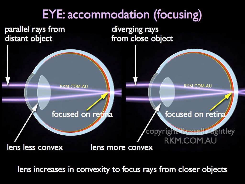 Accommodation eye northurthwall accommodation eye ccuart Image collections